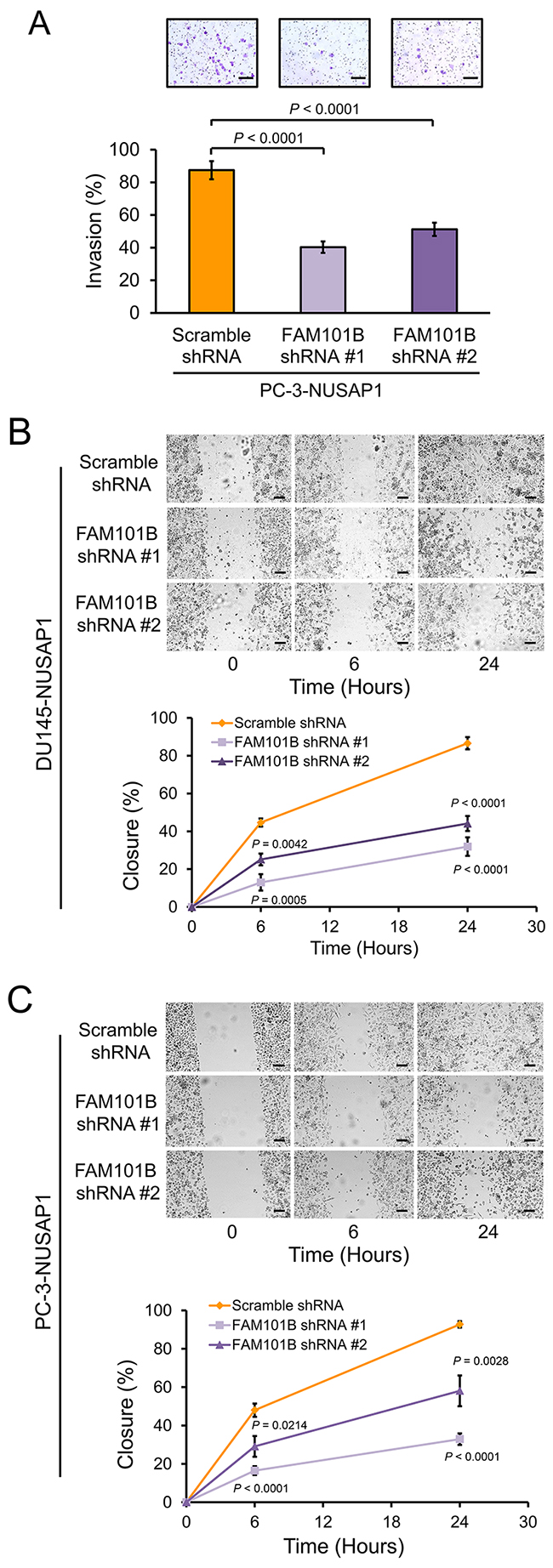 Knockdown of FAM101B decreases invasion and migration of prostate cancer cells.