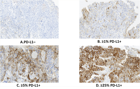 Tumor PD-L1 expressed at different levels in ESCC specimens.
