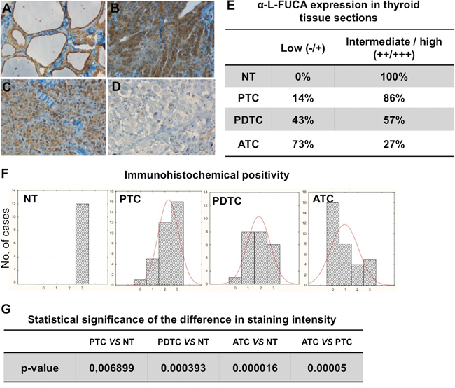 Immunohistochemical staining of tissue sections from normal thyroid (NT) A., from one sample of a PTC B., one sample of PDTC C. and one sample of ATC D. with the anti-α-L-FUCA-1 antibody.