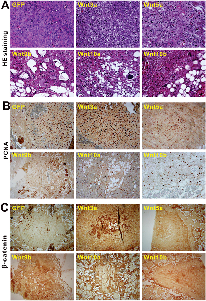 Nonecanonical Wnts induce cells differentiation, inhibit cell proliferation and downregulate β-catenin expression of the iHPx cells in the in vivo stem cell implantation assay.