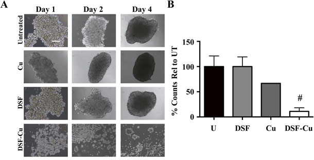 DSF-Cu disrupts formation of IBC tumor emboli under in vitro simulated growth conditions.