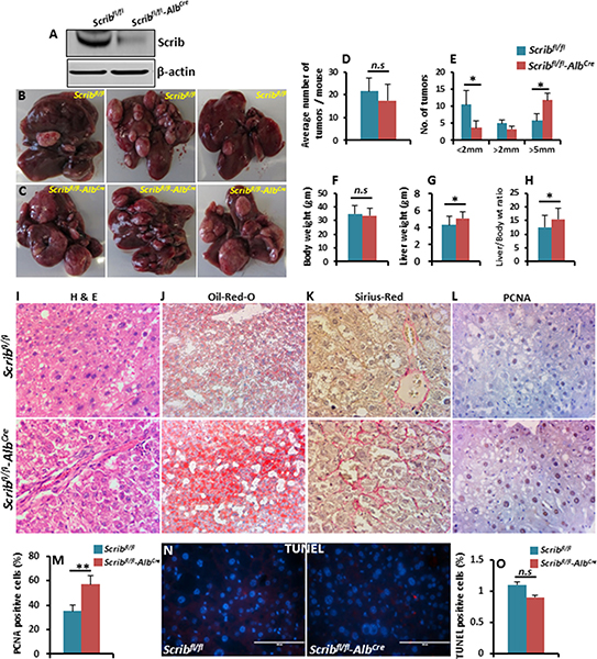 DEN-induced liver tumor growth is accelerated in Scrib-deficient mice.