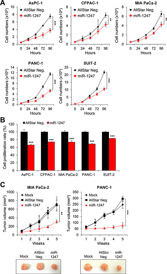 Overexpression of miR-1247 in pancreatic cancer cells inhibits cell growth and proliferation in vitro and in vivo.