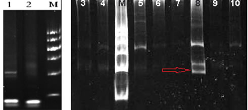 TCR gene rearrangement test in our hospital: TCR gene rearrangement by PCR was positive for TCR β and γ (red arrow, lane 8).