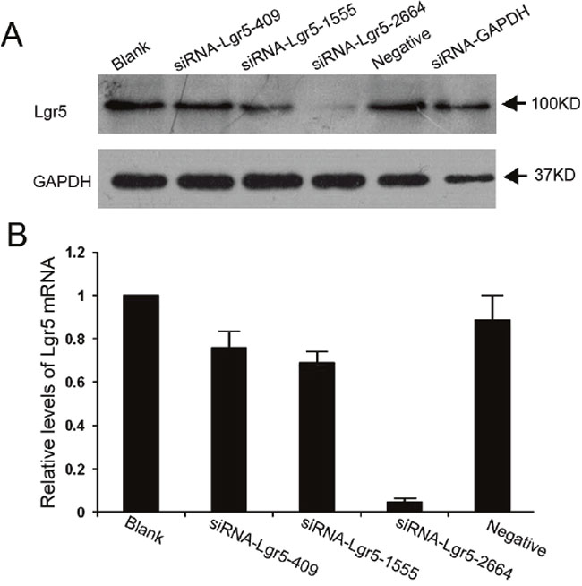 Suppression of Lgr5 protein and mRNA expression by siRNA in AGS gastric cells.