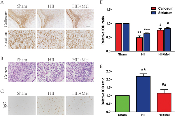 Melatonin improved white matter recovery and reduced BBB permeability after neonatal HII.