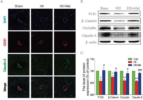 Melatonin prevented the loss of tight junction and adherens junction proteins after neonatal HII.