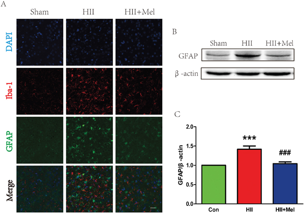 Melatonin decreased astrogliosis and microgliosis after neonatal HII.