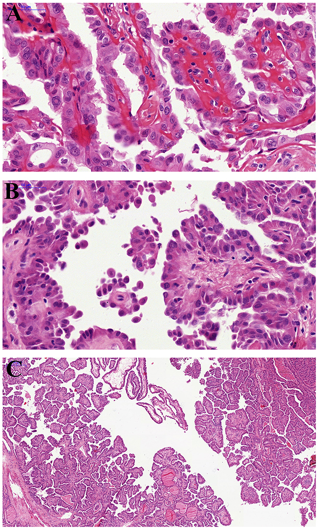 Pathological findings of hobnail variant papillary thyroid carcinoma.