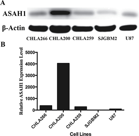 Patient derived pediatric brain tumor cells express high levels of ASAH1.