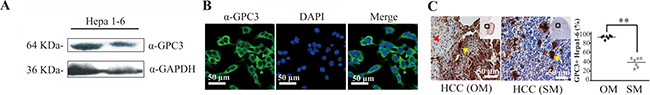GPC3 protein is highly expressed in Hepa1-6 cells and Hepa1-6 cell-induced HCC tissues in mice.