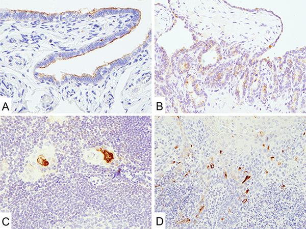 Mesothelin expression in normal tissues.