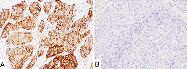 Mesothelin immunostaining with 5B2 in thymic tumors.