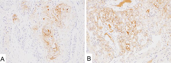 Mesothelin immunostaining with 5B2 in urothelial and clear cell renal cell carcinoma.