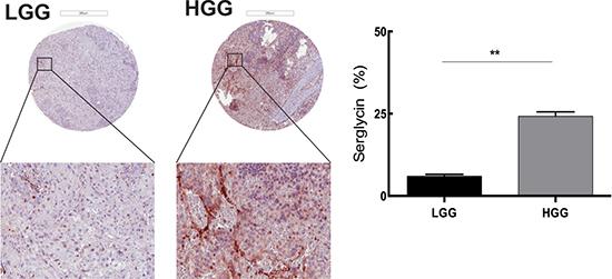 Serglycin expression is correlated with human glioma malignancy grade.