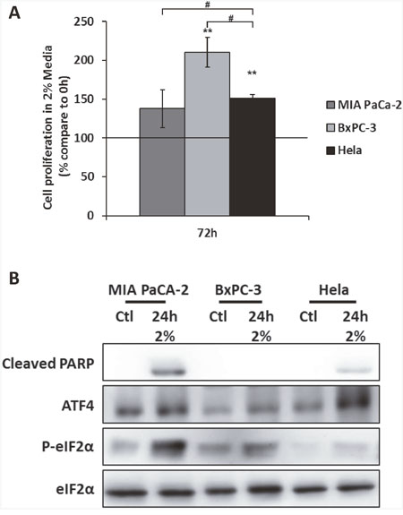 The expression of ATF4 is associated to the resistance to amino acid deprivation in the cancer cell line BxPC-3.