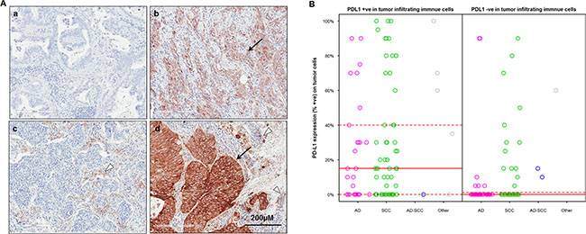 PD-L1 expression on tumor cells (TC) and tumor infiltrating immune cells (IC) in Chinese NSCLC patients.
