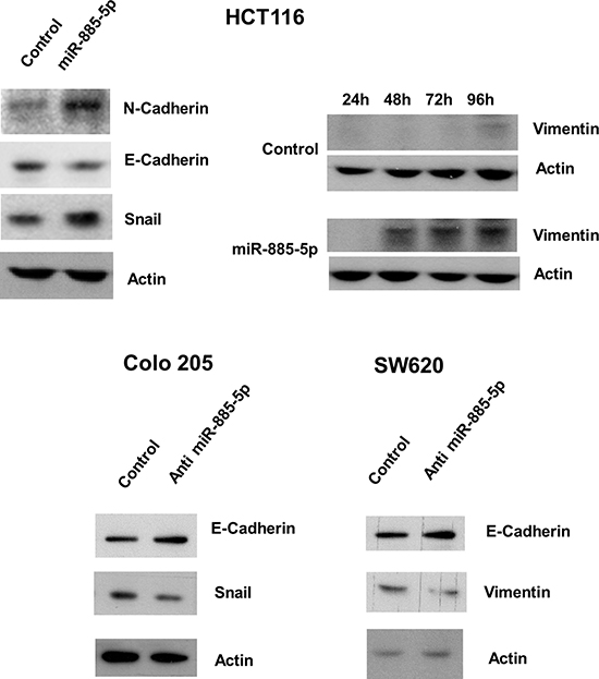Effect of miR-885-5p on epithelial-mesenchymal transition proteins.