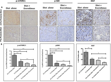 Low protein diet decreases mTOR and proliferation activity in the LuCaP23.1-CR model.