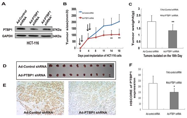 Kockdown of PTBP1 generally inhibited tumor growth in vivo.