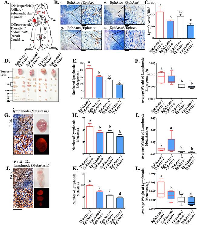 EphA10 and EphA10 expression pattern dominants lymph node metastases.