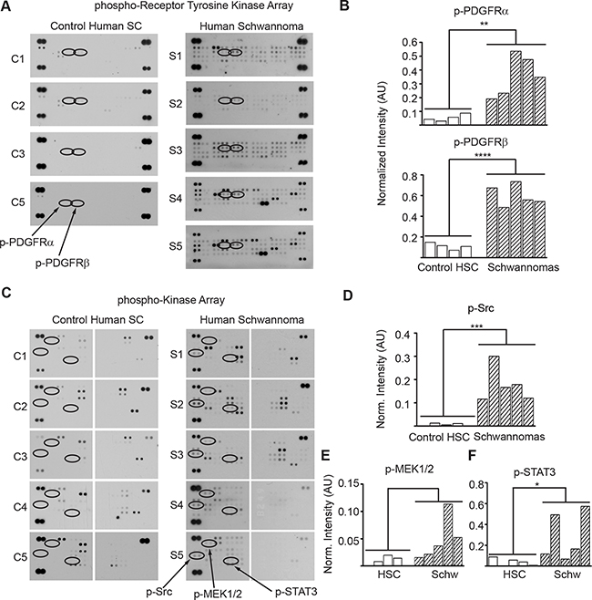 PDGFRα/β, SRC, MEK and STAT3 are overactive in human schwannomas.