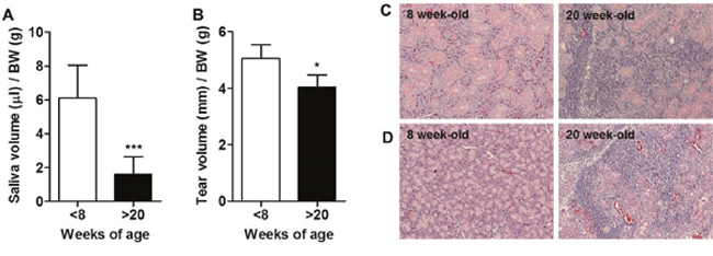 Development of Sjögren's syndrome (SS) occurred in over 20-week-old male NOD mice.
