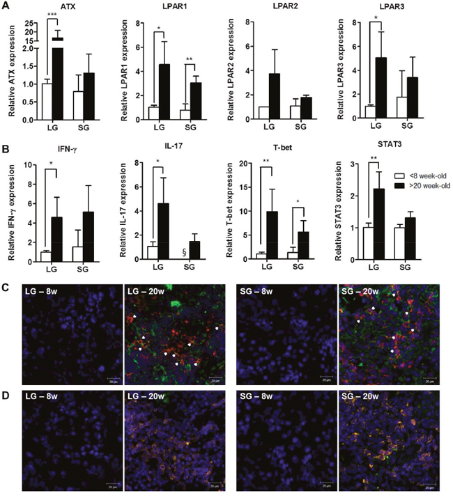 Expression of autotaxin, LPARs, and IL-17 was increased in exocrine glands from NOD mice with SS.