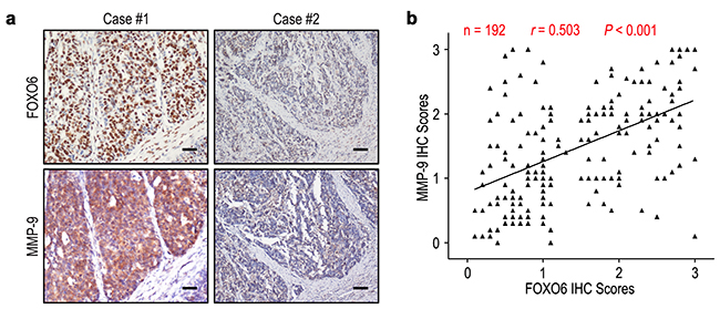 FOXO6 and MMP-9 levels correlated in 192 gastric cancer tissues.