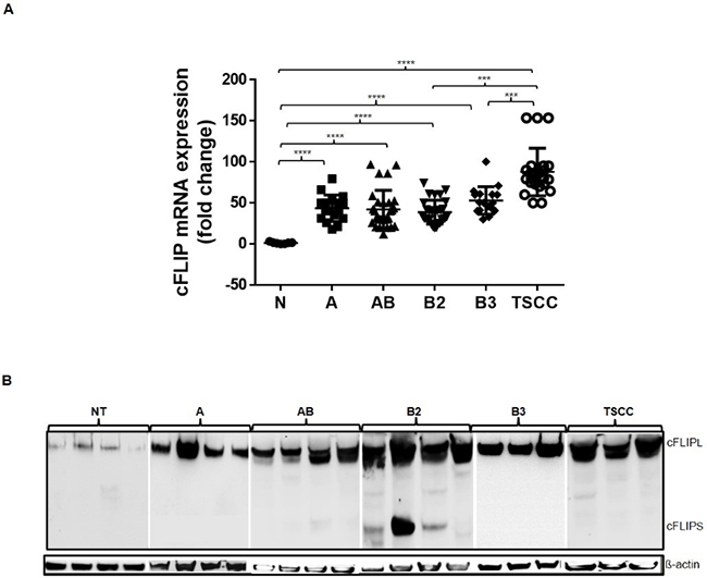 cFLIP mRNA and protein expression analysis.
