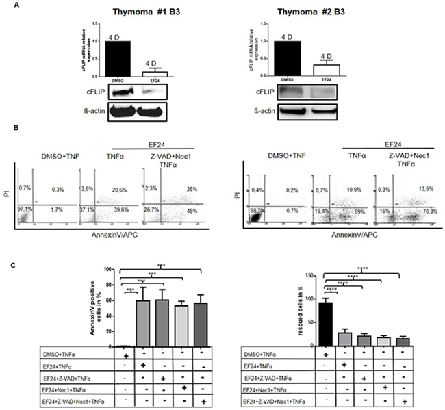 Cultured TECs are highly sensitive towards NF-κB inhibition and can not be rescued from cell death by inhibition of caspases and necroptosis pTECs from two B3 thymomas were first pretreated with Z-VAD-FMK for 1 hour before they were treated in addition with the NF-κB inhibitor, EF24 for 12hours.