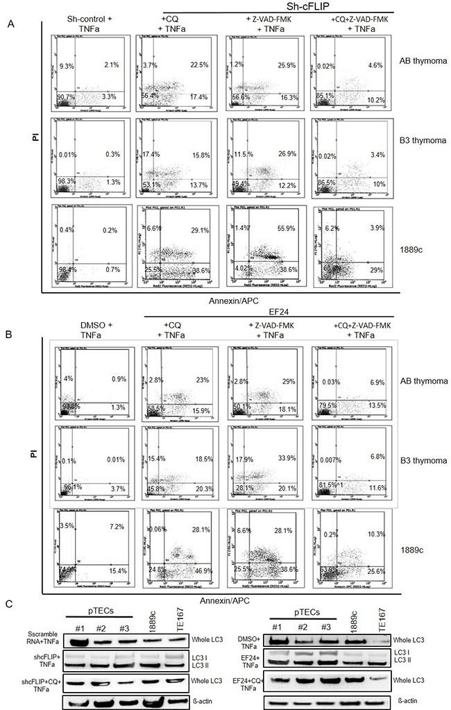 Attenuation of TNFα induced cell death by blocking autophagy and apoptosis in sh-cFLIP transfected and EF24 treated pTECs Autophagy inhibition by chloroquine (CQ) treatment.