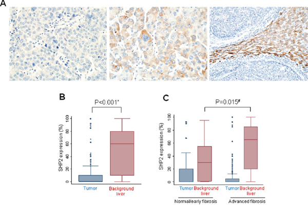 Immunohistochemical detection of SHP2 expression in human HCCs.