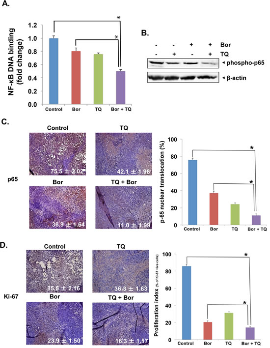 Fig 6: TQ enhances the effect of bortezomib against the expression of NF-κB and inhibit proliferation in MM tumor.