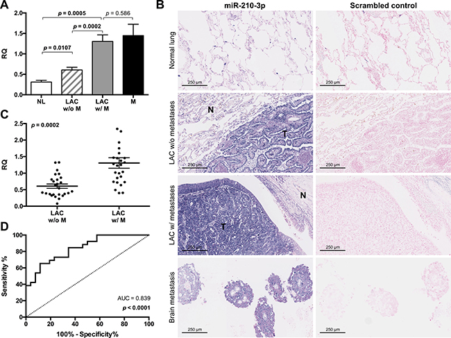 Increased expression of miR-210 is associated with distant metastasis in LAC.