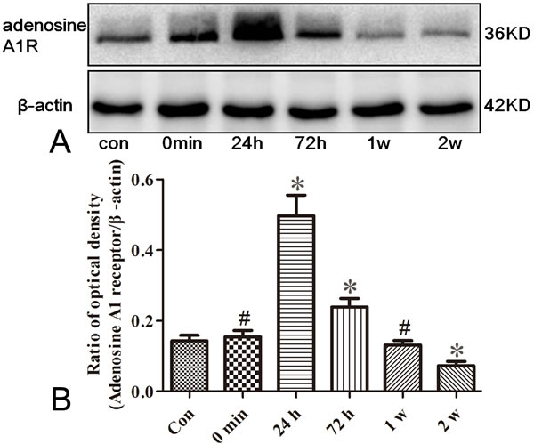 Western blotting analysis for adenosine A1 receptor in the hippocampus of rats.