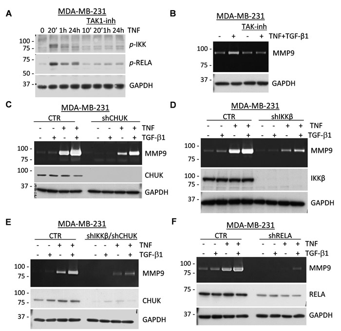 TAK1 signaling is essential for the induction of MMP9 by TNF and TGF-β cytokines.