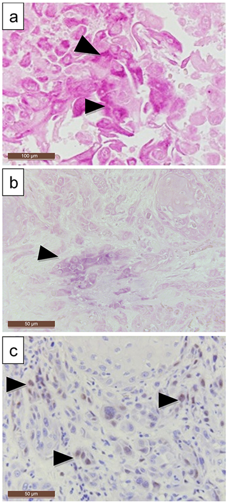 LMP-1 expression compared to EBER expression in a larynx carcinoma.