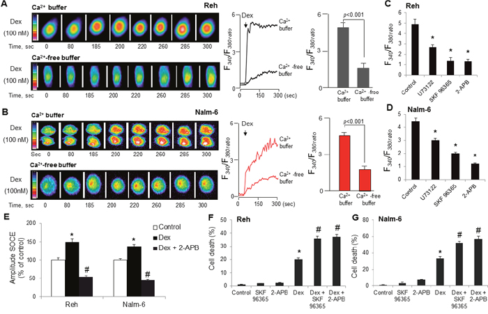 Dexamethasone stimulates intracellular Ca2+ release and SOCE and co-treatment with dexamethasone and SOC inhibitors markedly enhances ALL cells death.