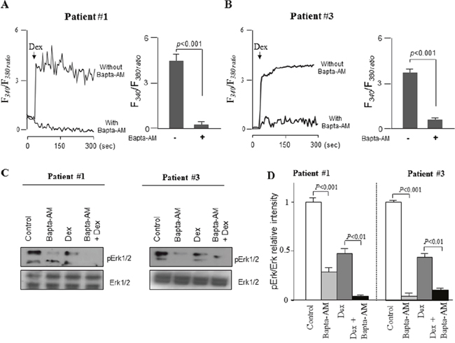 Bapta-AM potentiates dexamethasone-induced inhibition of ERK1/2 signaling by chelating Ca2+ signaling in primary blasts from ALL patients.