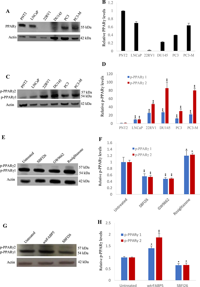 Effects of SBFI26 on levels of biologically active PPARγ or phosphorylated PPARγ (p-PPARγ1 and p-PPARγ2) in prostate cancer cells.