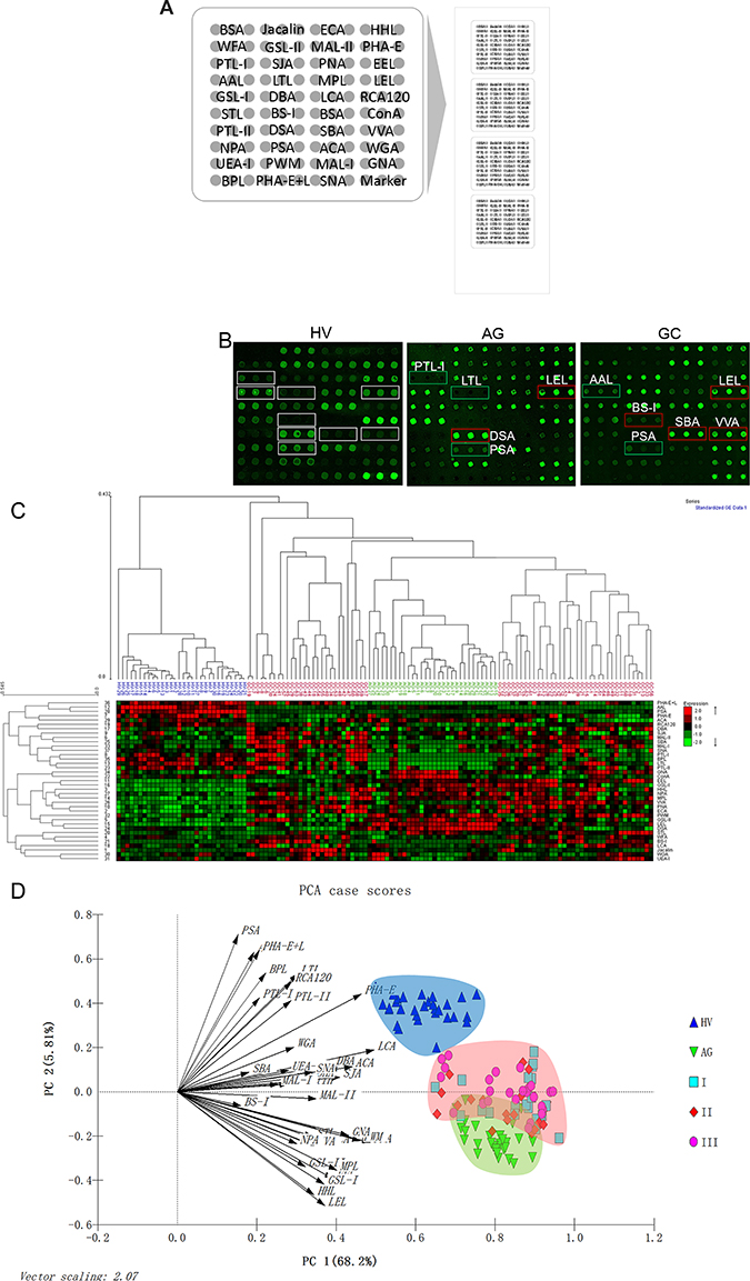 The different salivary glycopatterns in Patients with GC or AG and in HV using a lectin microarray.