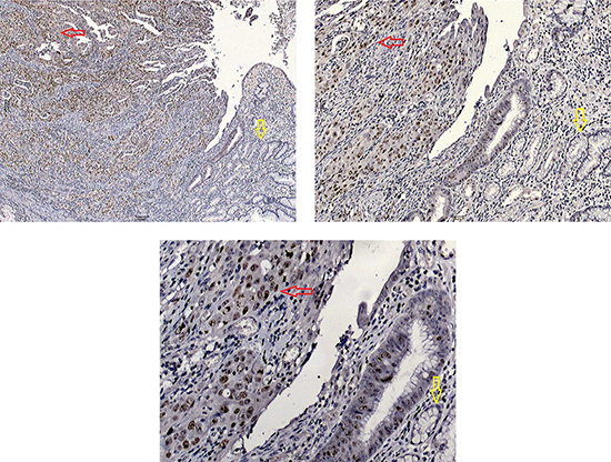 Immunohistochemical staining of BRD4 protein in gastric carcinoma (red arrow) and adjacent normal tissue (yellow arrow).