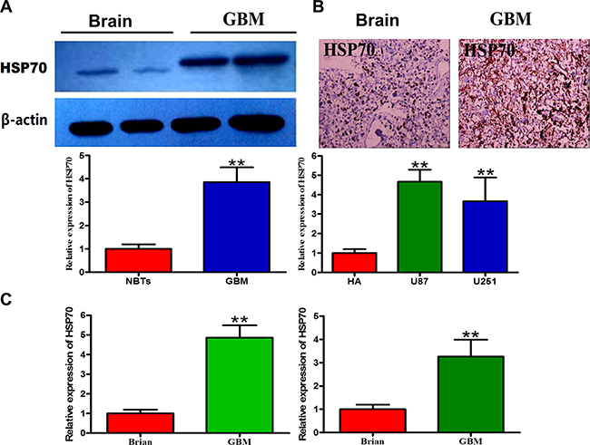 Expression levels of HSP70 in glioma cells and normal cells.