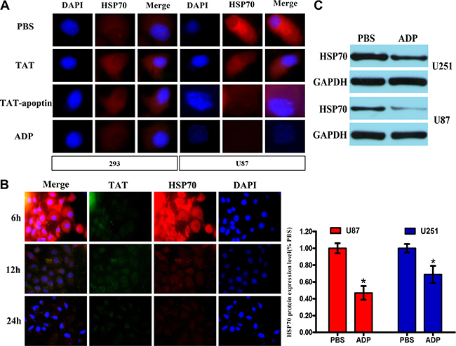 ADP downregulates HSP70 expression in GBM cells.