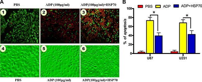 HSP70 antagonizes ADP-induced apoptosis in U87-MG tumor cells.