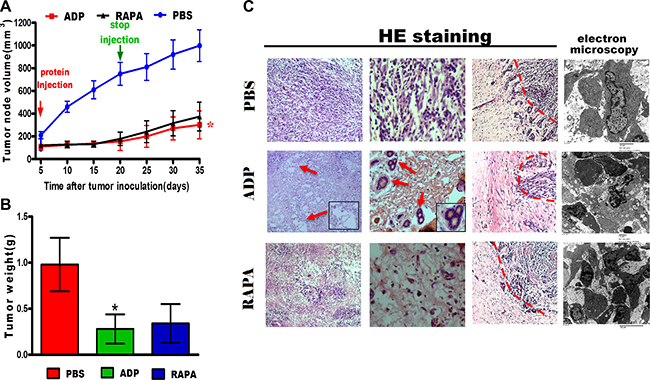 ADP inhibits U87-MG cell growth in vivo.