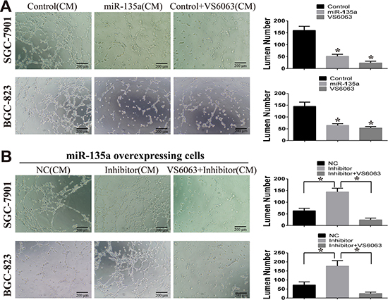 miR-135a suppress tubules formation of HUVEC cells.