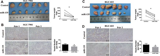 Effects of miR-135a on tumor growth and angiogenesis in vivo.