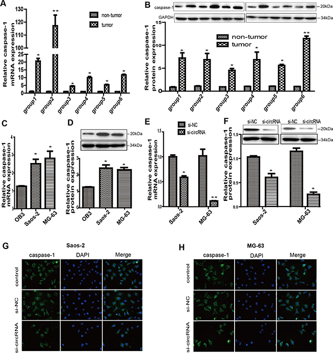 Circ-0016347 was positively related to the expression of caspase-1 in osteosarcoma.
